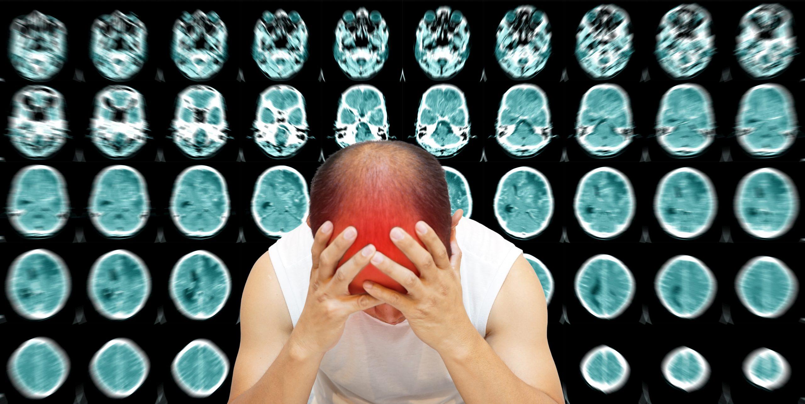 Muž trpící bolestí hlavy z důvodu meningokokové nákazy.